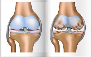 pareri tratament osteoartrita opinii medicale simple