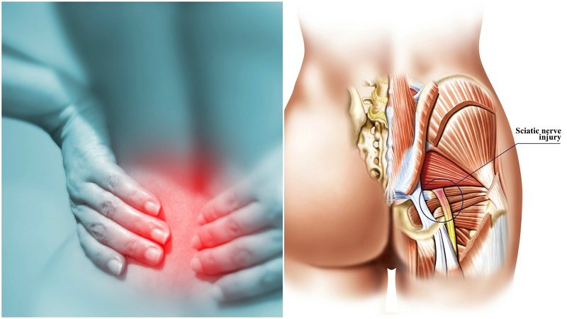 8 Remedies For Sciatica Pain That You Must Try Before You Take A Medication