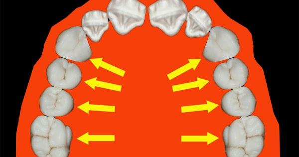 Операция на челюсть: показания и противопоказания