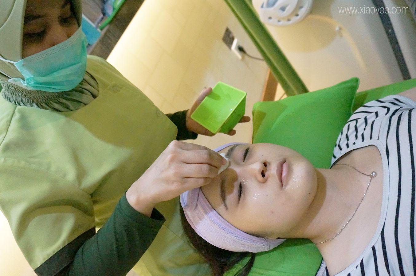 ZAP permanent hair removal, ZAP clinic, ZAP Facial rejuvenation, ZAP Surabaya,