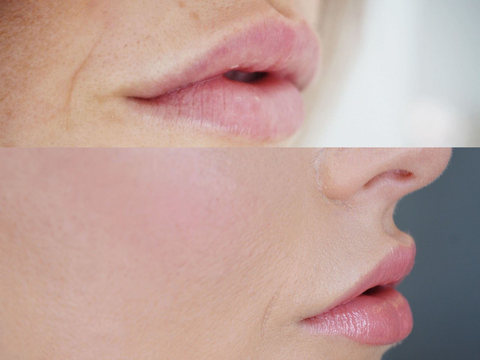 MY LATEST LIP FILLERS BY ASSURE AESTHETICS // NORTH EAST LIP FILLERS