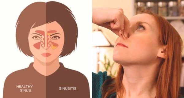 Home Remedies for Sinus Infection and How to Clear Your Sinuses and Relieve Pain in 20 Seconds