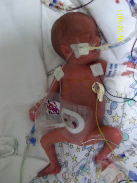 Baby With Colostomy Bag