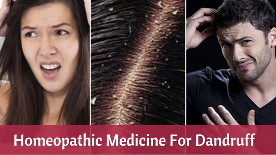 Homeopathic Medicine And Remedies For Dandruff
