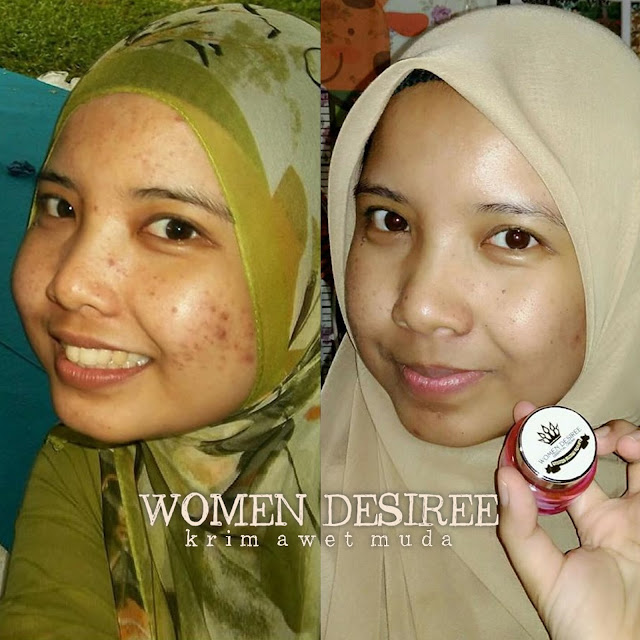 z wdec WD _ nad adleesya beauty _ ainaa serum _ cikgu june _  women desiree _ krim awet muda 39