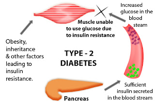 diabetes type 2, diabetes, health, diabetes causes