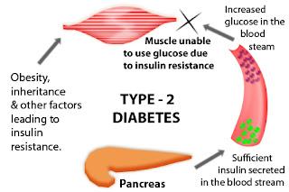 diabetes type 2, diabetes, health, diabetes causes