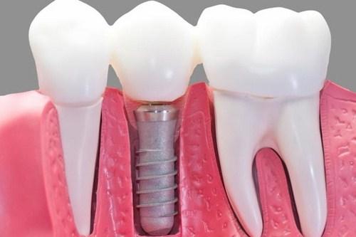 Kết quả hình ảnh cho Đặc trưng bởi sự tăng trưởng liên tục răng implant
