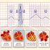 3 Langkah Mudah Interpretasi EKG