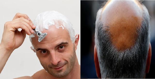 Meshkujt pa flokë mendohen si më të Fortë dhe Dominantë thekson studimi