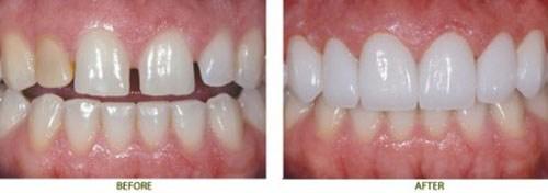 răng sứ sử dụng được bao lâu -3