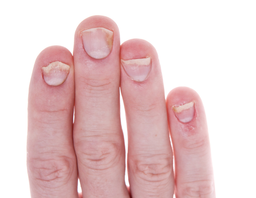 What causes pitted fingernails - Awesome Nail