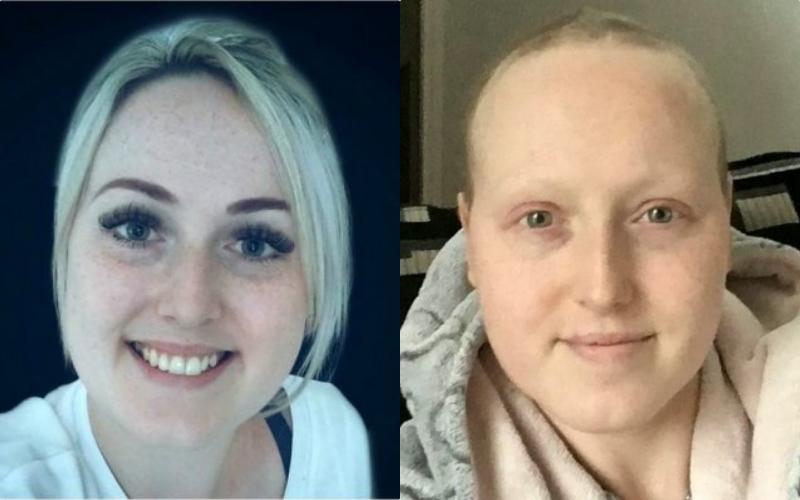 Le diagnostican cáncer y después de recibir quimioterapia descubren que estaba sana