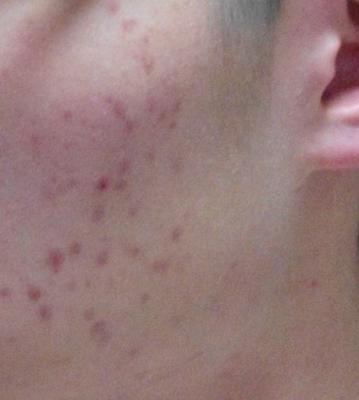 使用療法前,大量暗瘡印