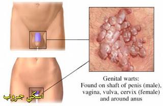 Cauterizare negi genitali constanta