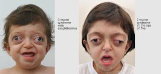 Apa itu Sindrom Crouzon, Penyebab dan Gejalanya