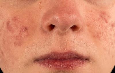 Apprenez à effacer les cicatrices d'acné avec ces 4 remèdes naturels