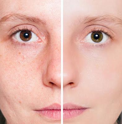 Comment prendre soin de la peau pour éviter les cicatrices d'acné