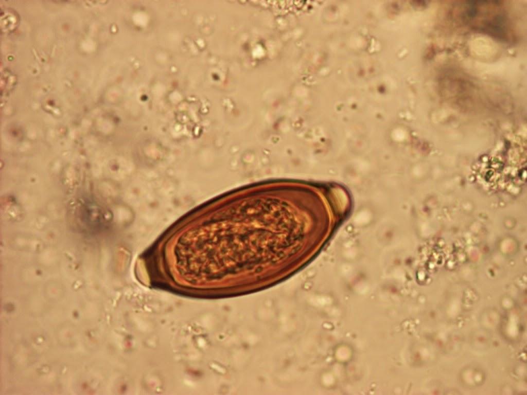 a blastocystosis parazita Izumi és Cana parazita