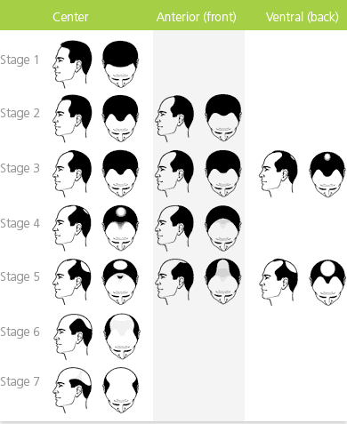 norwood scale, types of hair loss, hair loss facts, forhair korea