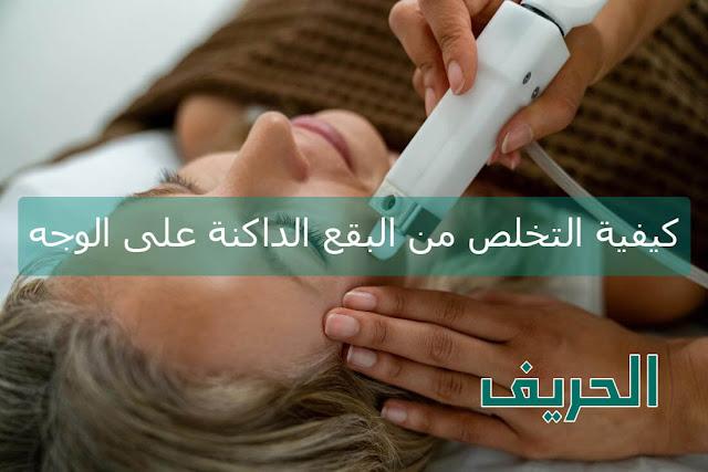 كيفية التخلص من البقع الداكنة على الوجه