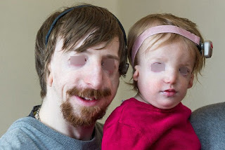 TCS, an inherited condition as shown an image of a parent and a child with treacher collins syndrome Treacher collins syndrome pictures