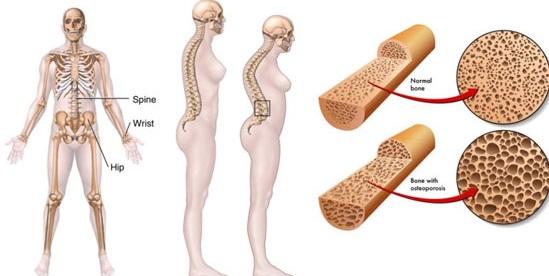 اعراض هشاشة العظام،أعراض هشاشة العظام في اليد،أعراض هشاشة العظام في الركبة،أعراض هشاشة العظام عند الأطفال،أنواع هشاشة العظام،مضاعفات هشاشة العظام،تشخيص هشاشة العظام،نسبة هشاشة العظام،تعريف هشاشة العظام،