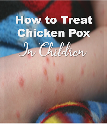 how to treat chicken pox in children