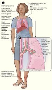 Symptoms of Lymphoma in Women   Folkloregalego Info