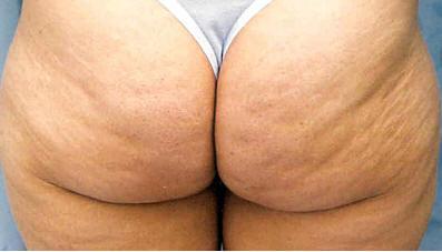 Fat Womans Butt 79