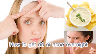 Best way to clear pimples overnight
