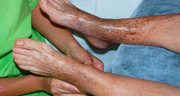 IF YOU HAVE POOR CIRCULATION, HERE IT IS HOW TO SOLVE THE PROBLEM IN JUST 20 MINUTES!