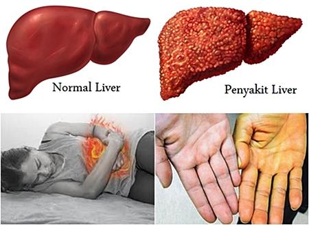 https://qnckesehatan.blogspot.com/2017/10/Benarkah-Penyakit-Liver-Bisa-Menyebabkan-Kematian.html