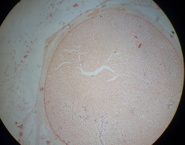 histology slide of transverse section of peripheral nerve
