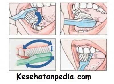 Cara Menghilangkan Karang Plak Gigi Dan Memutihkan Gigi Secara