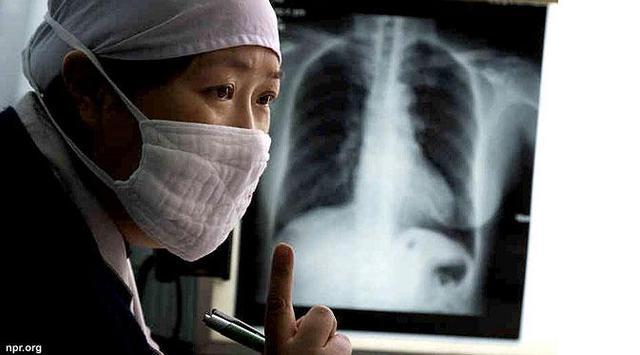 Obat Herbal Tbc Kulit