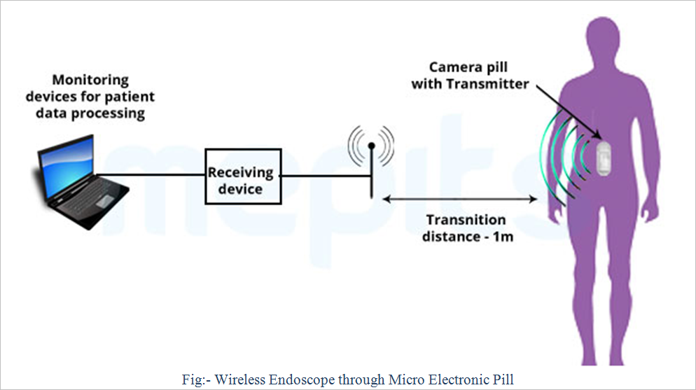 wireless capsule endoscopy principle working components Conditions has attracted both physicians and engineers to work together and  investigate new  operational principle of a wireless capsule endoscope   system includes several core components: an energy source, a processing/ control unit,.