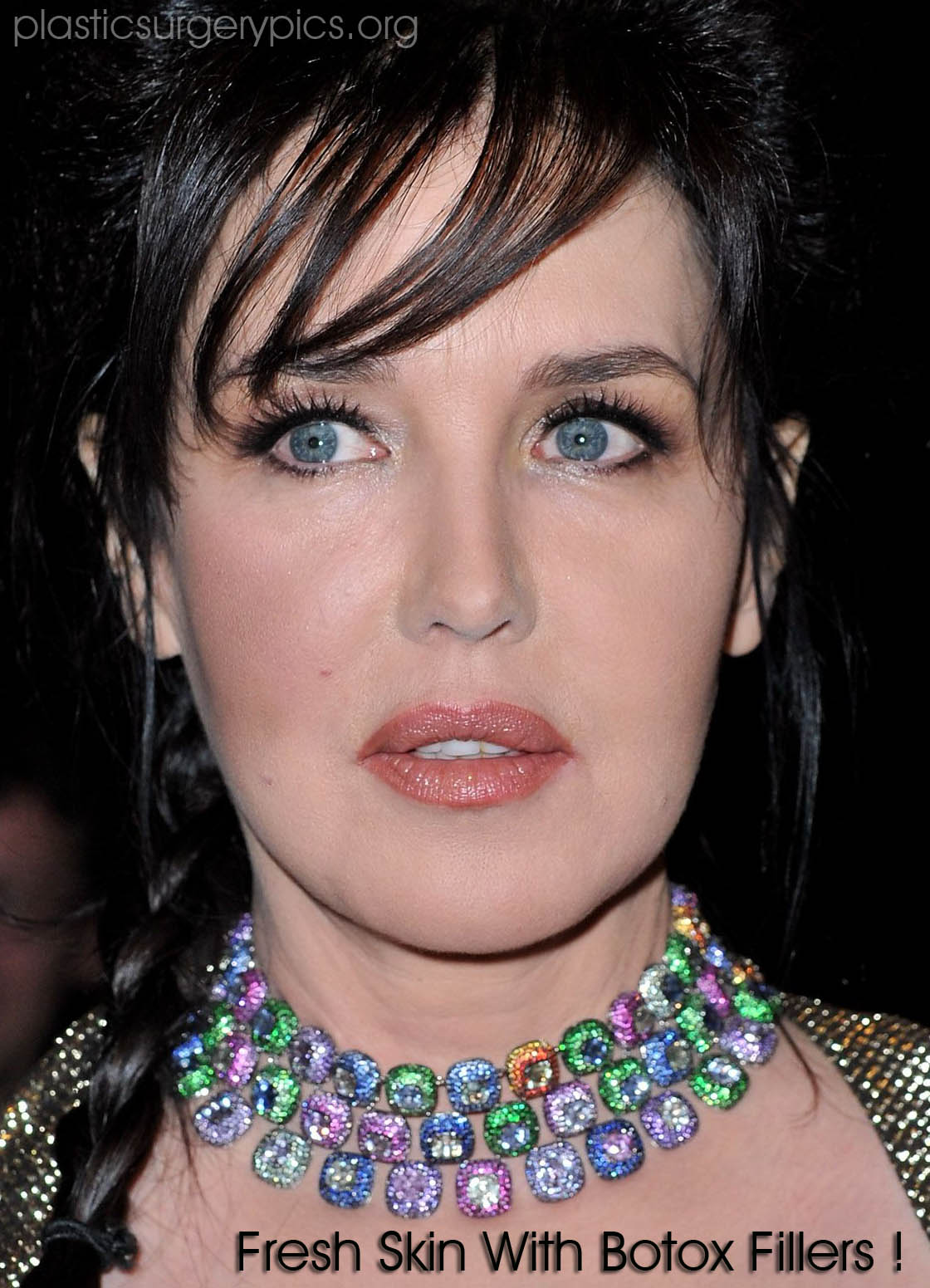 Isabelle Adjani Plastic Surgery Before And After Botox