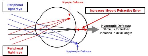 Hyperopic  defocus of rays