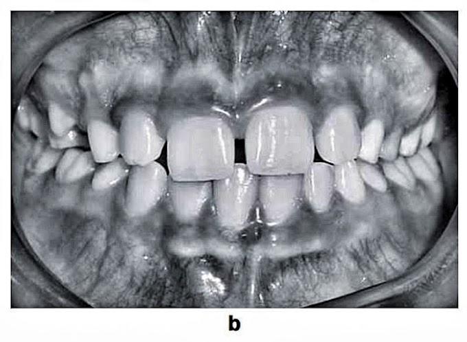 PDF: Associated Dental Anomalies: case report