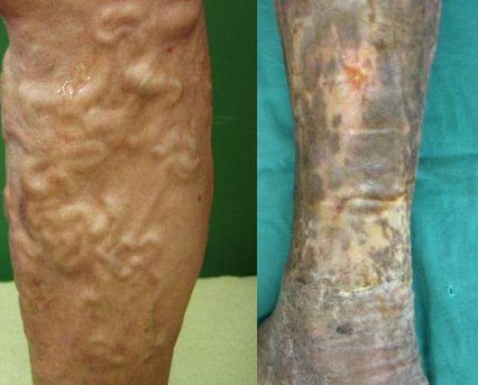 La gamba con danni di vene