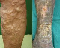 vene varicose alle gambe, situazione grave