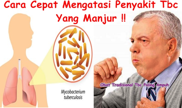 Obat Tradisional Tbc Paling Ampuh