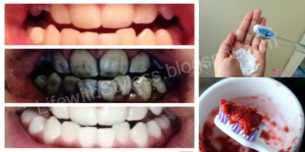 Tips To Whiten Your Teeth Naturally Must Check Life With Styles