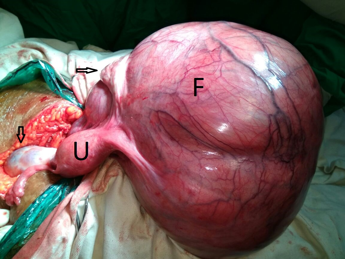 Intraoperative image of the broad ligament fibroid showing uterus (U),  large fibroid (F), and ovaries (arrow).
