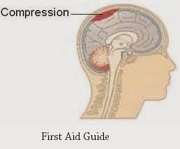 Cerebral Compression--First Aid Guide