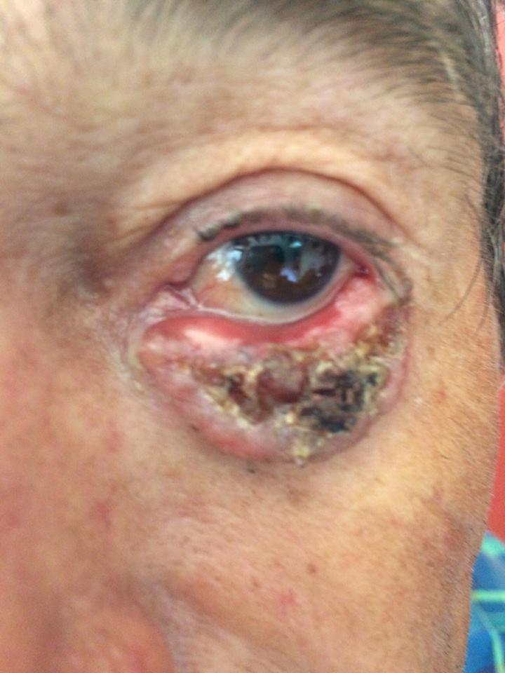 Carcinoma basocelular nodular ulcerado