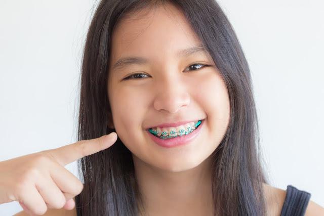 4 Resiko Memakai Gigi Kawat yang Tak Dihiraukan