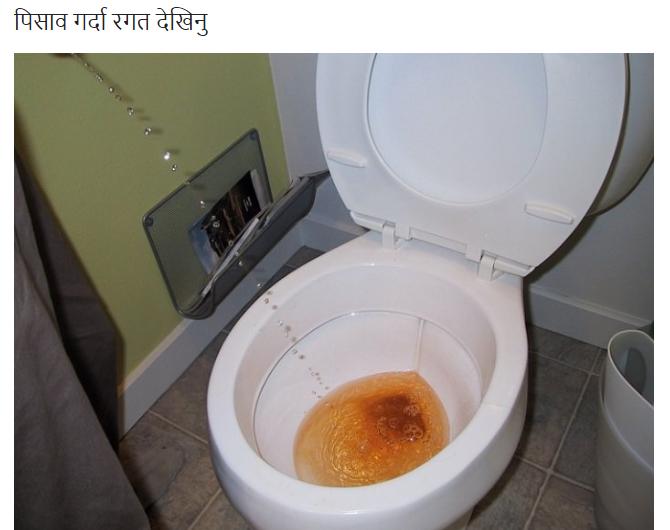Почему возникают проблемы с туалетом после родов?