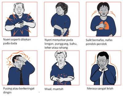 gejala-gejala jantung koroner
